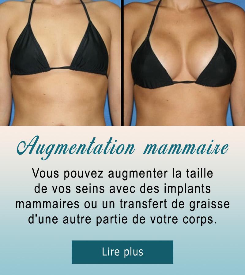 augmentation-seins