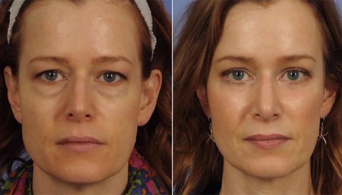 Blépharoplastie avant et après