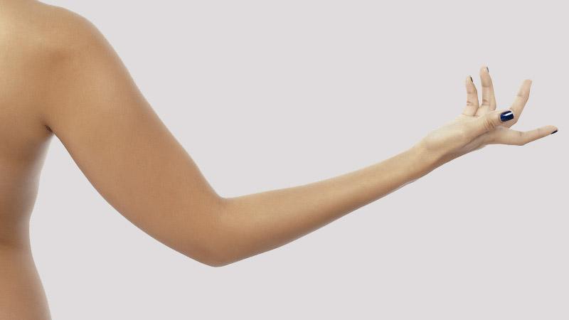 bras-femmes-lipo