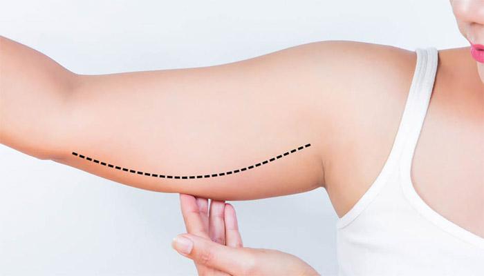 Chirurgie du lifting des bras