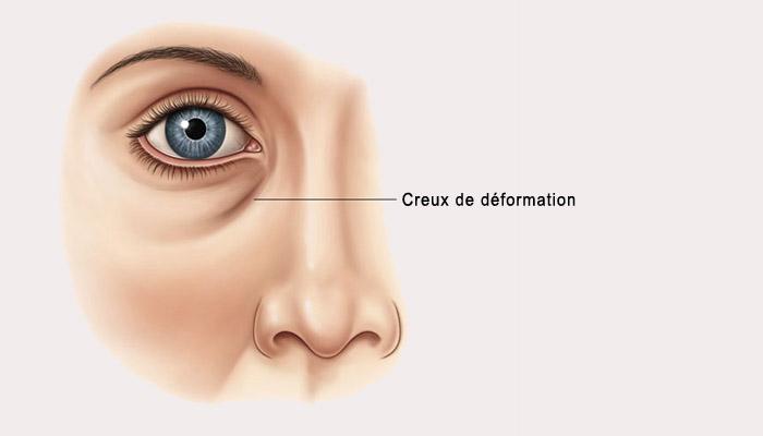creux-deformation