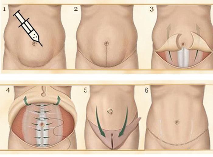 Étapes de l'abdominoplastie