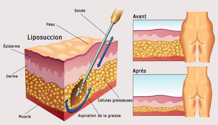 Étapes de la liposuccion