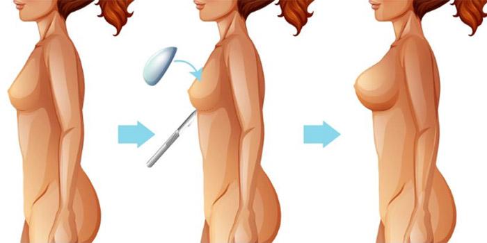 etapes-mammoplastie