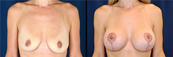 Lifting mammaire avant et après