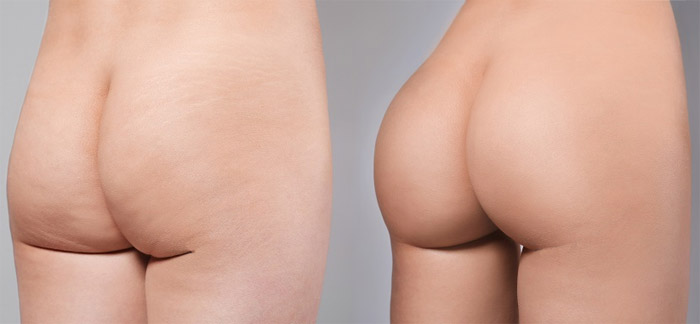 Lifting des fesses avant et après