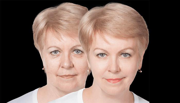 lifting-visage-avant-apres
