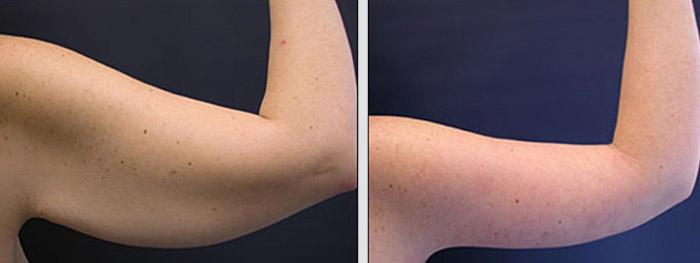 Lipectomie des bras avant et après