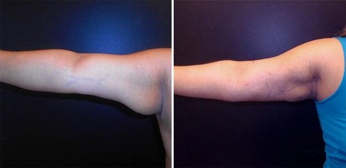Chirurgie de liposuccion des bras