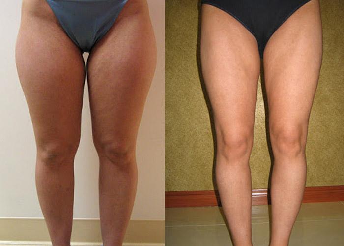 Chirurgie de liposuccion des cuisses