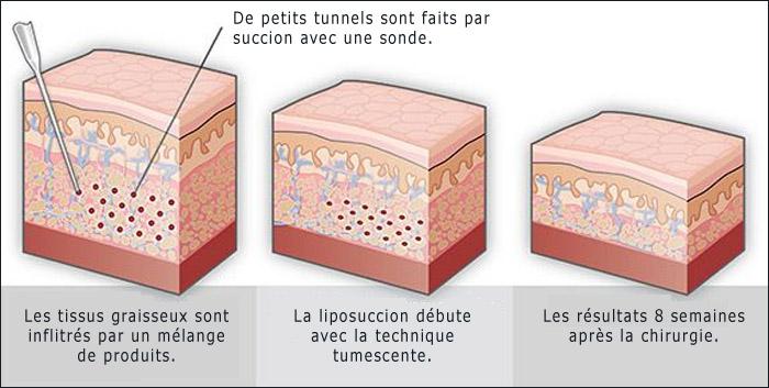 Liposuccion tumescente