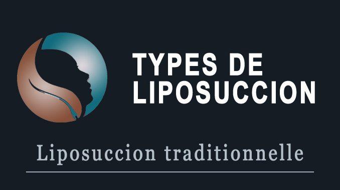 Liposuccion traditionnelle