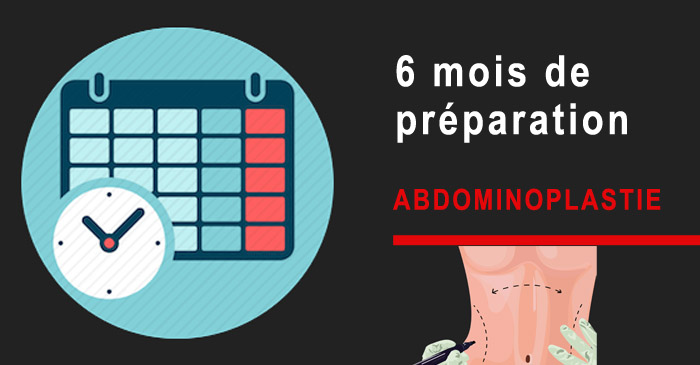 Préparation pour l'abdominoplastie