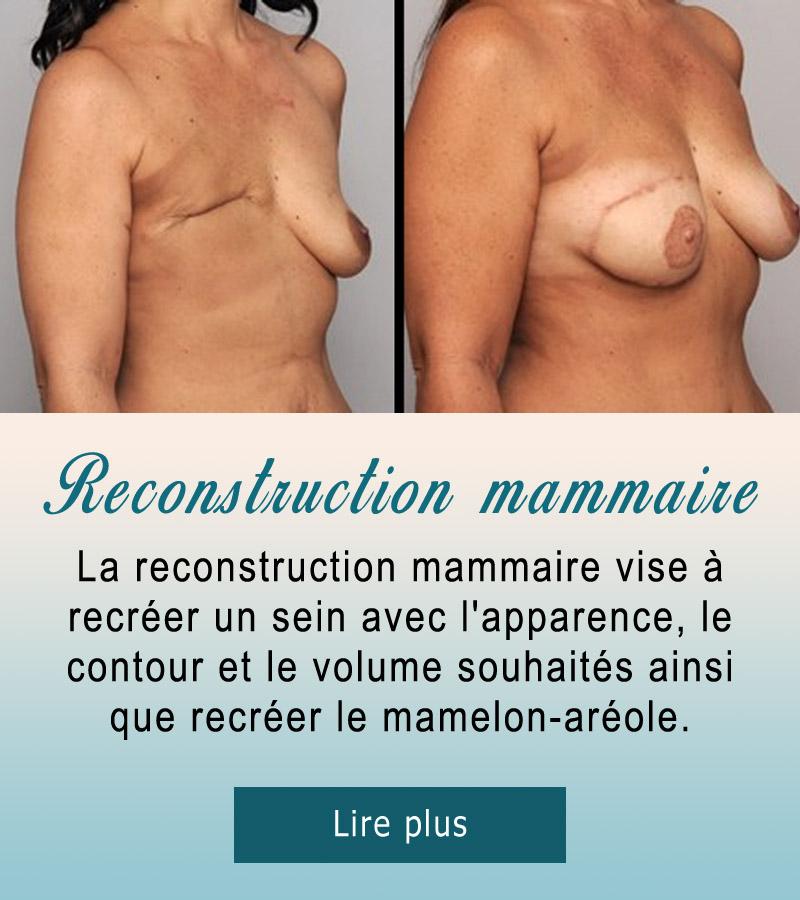 recontruction-seins
