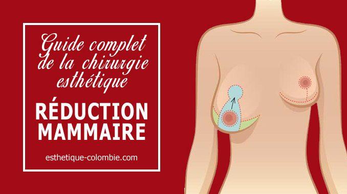 Guide de la réduction mammaire