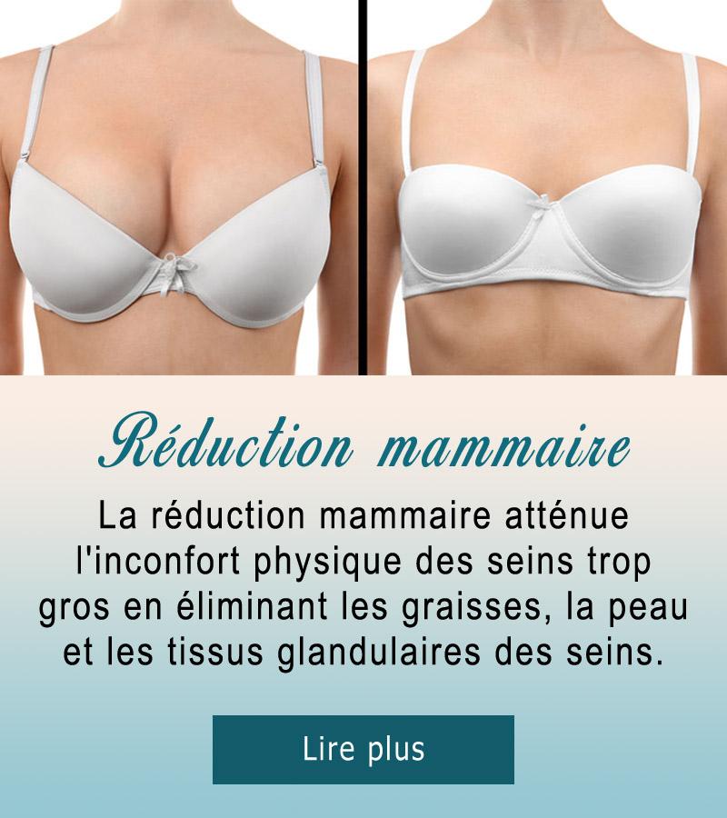 reduction-seins