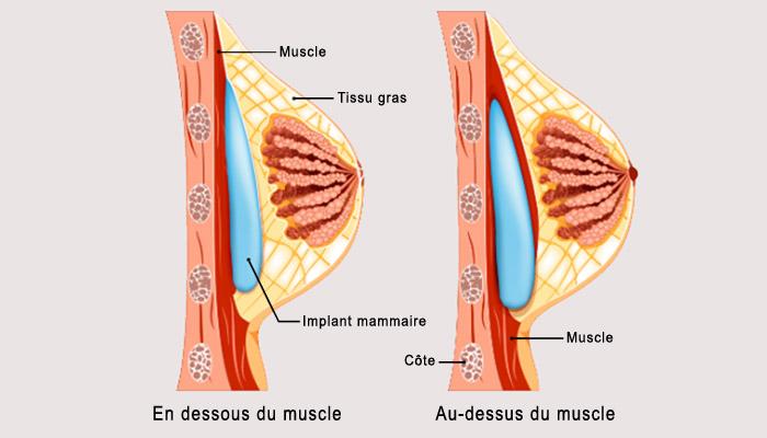 Position des implants mammaires