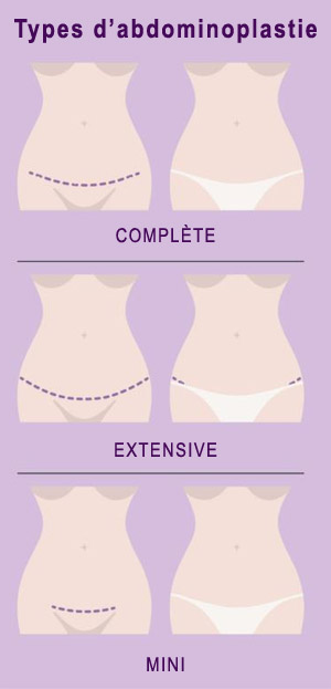 Types d'abdominoplastie