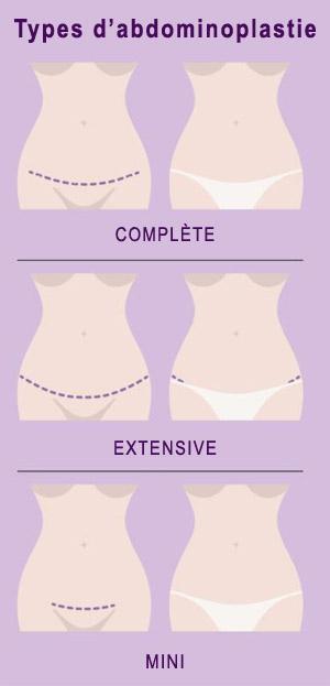 types-abdominoplastie