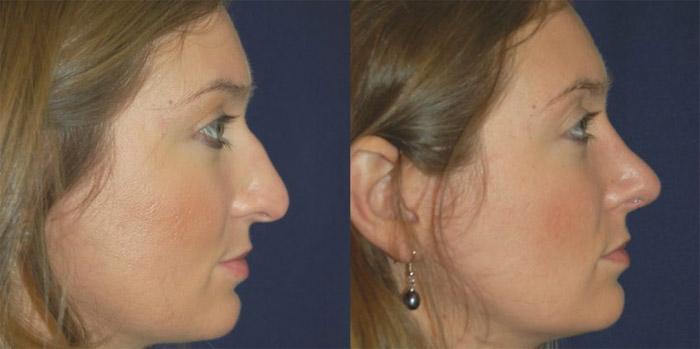 Chirurgie du nez avant et après