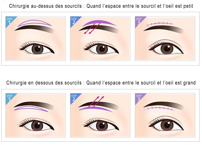 Procédures lifting des sourcils