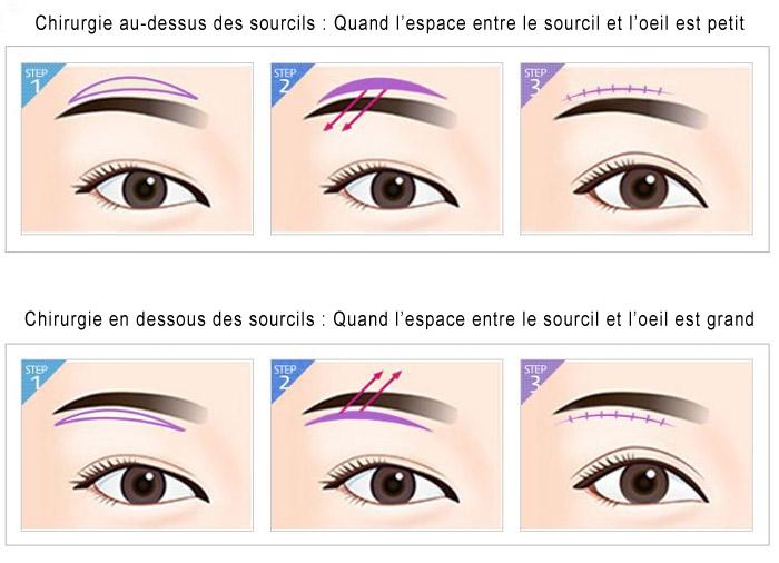 etapes-chirurgie-sourcils