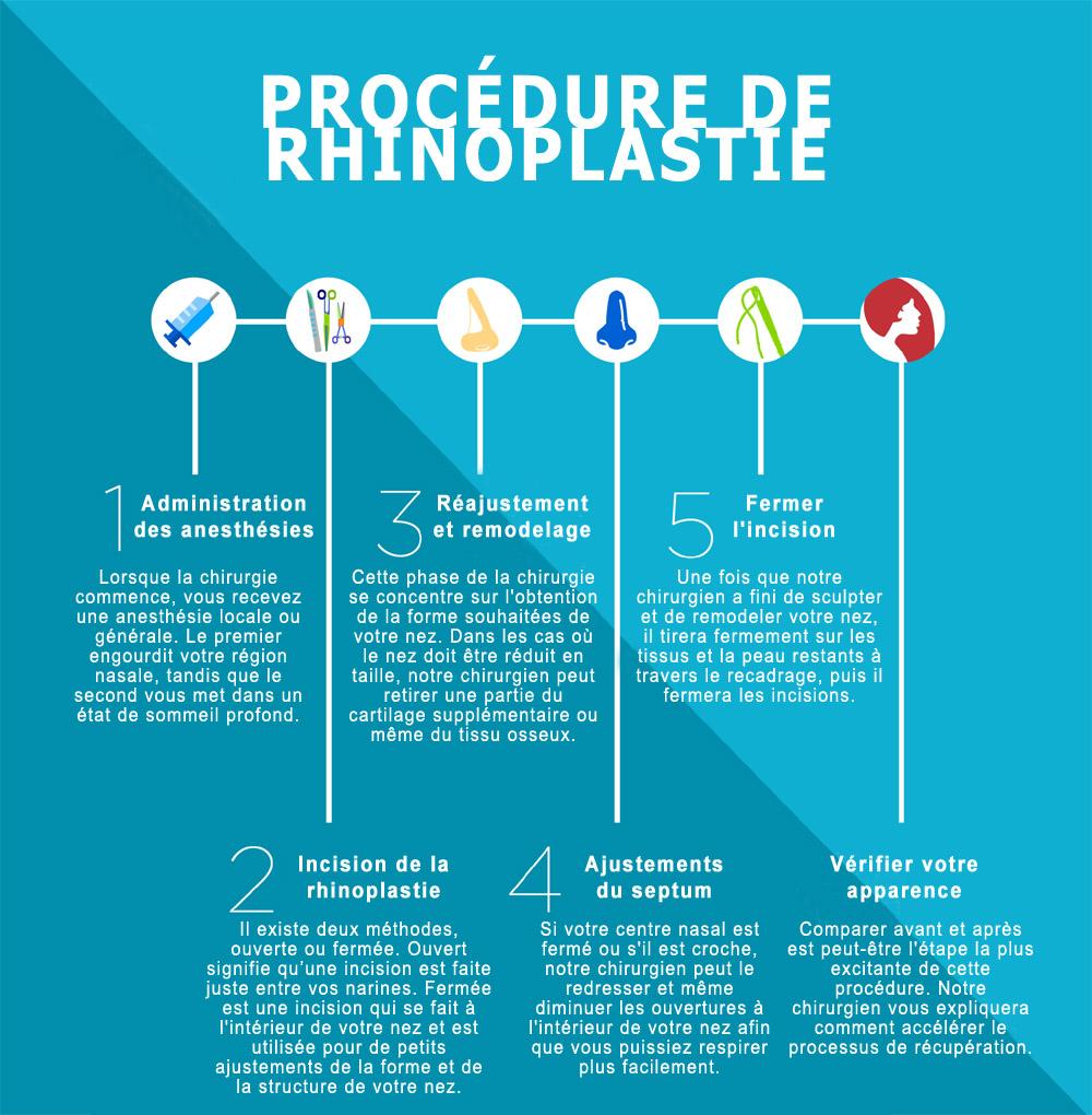 etapes-rhinoplastie