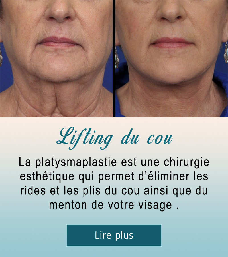 lifting-cou-4