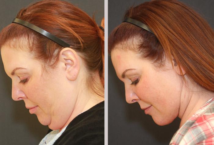 Récupération lifting du cou