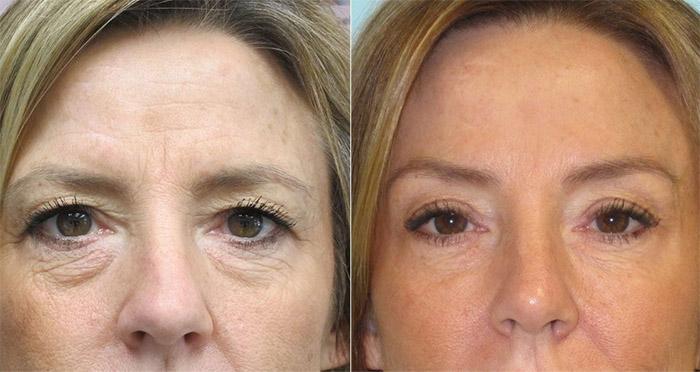 Lifting des sourcils avant et après