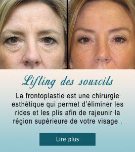Lifting des sourcils et front