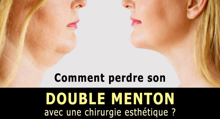 double-menton