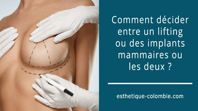Lifting ou implants mammaires