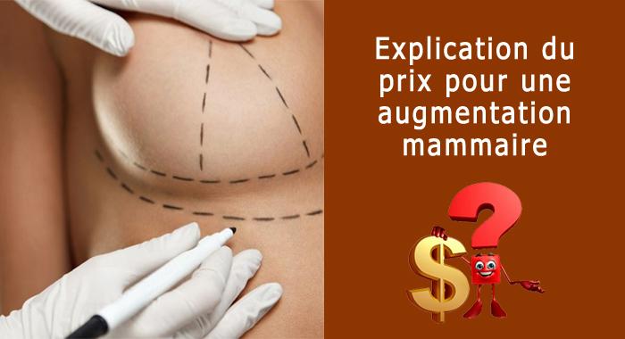 prix-augmentation-mammaire