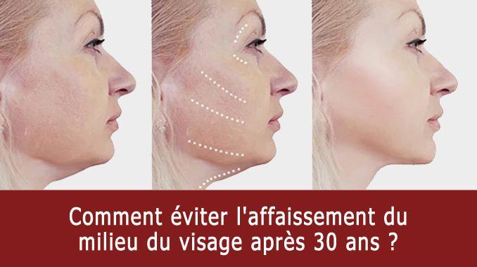 affaissement du milieu du visage