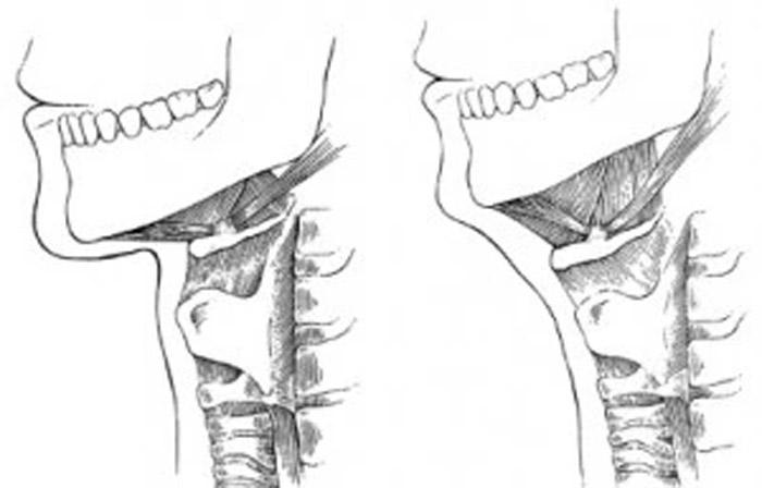 Position osseuse du cou