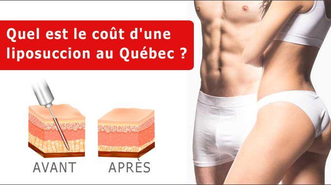 Quel est le coût d'une liposuccion au Québec