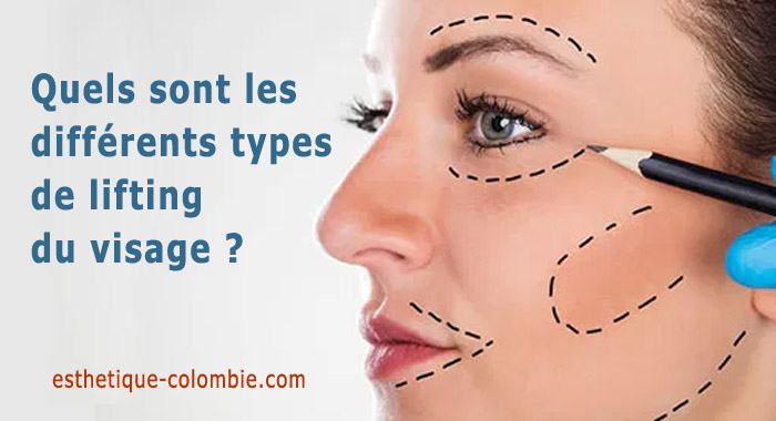 types-lifting-facial