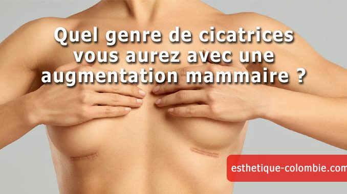 cicatrices augmentation mammaire