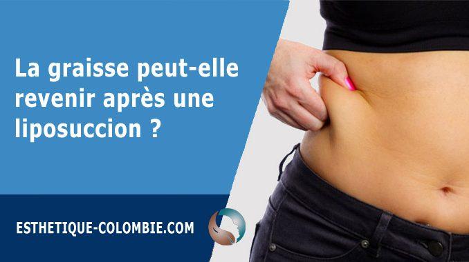 La graisse peut-elle revenir après une liposuccion ?