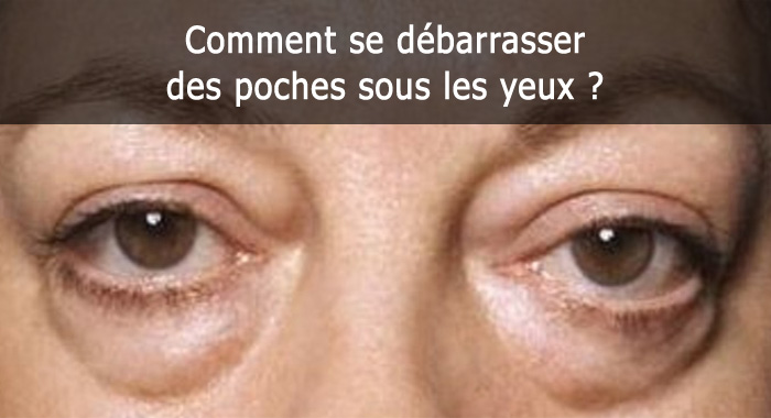 poches-yeux