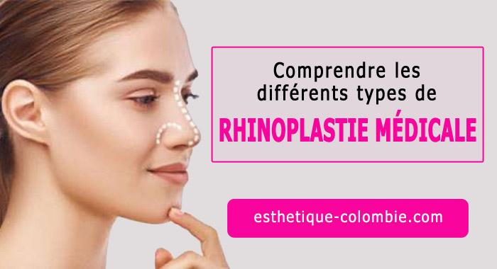 rhinoplastie-medicale