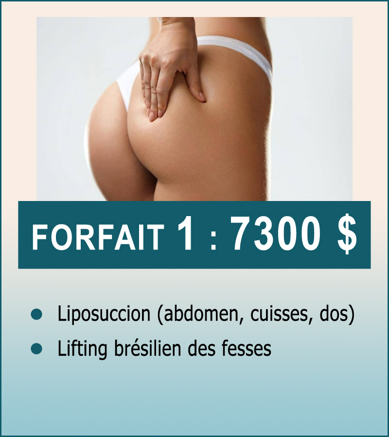 forfait-1