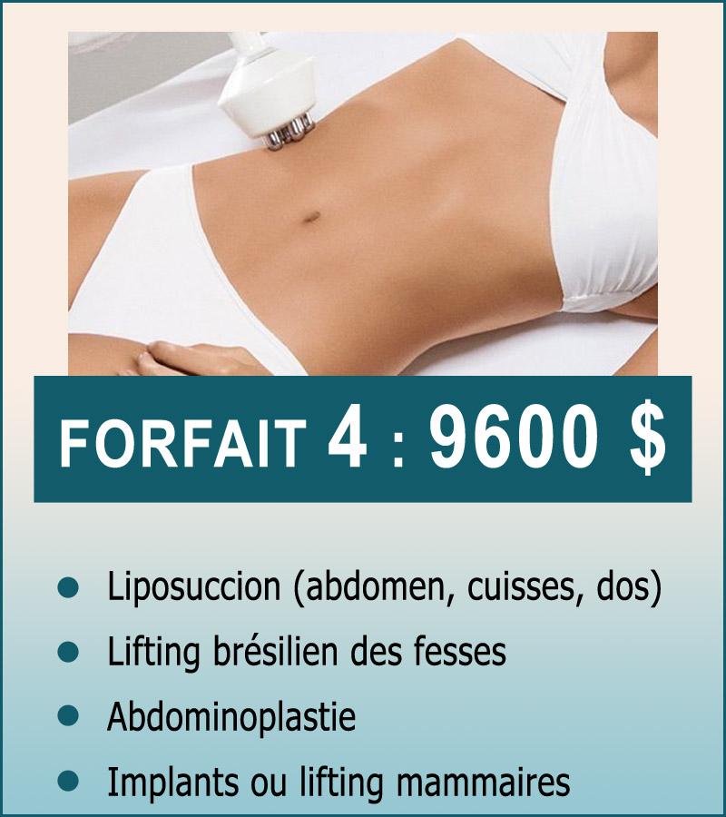 forfait-4