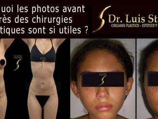 photos avant et après des chirurgies esthétiques