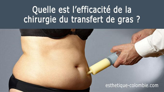 chirurgie du transfert de gras